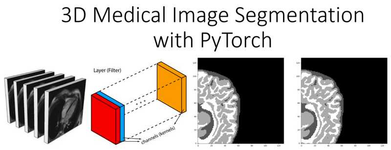 Deep learning in medical imaging - 3D medical image segmentation with PyTorch