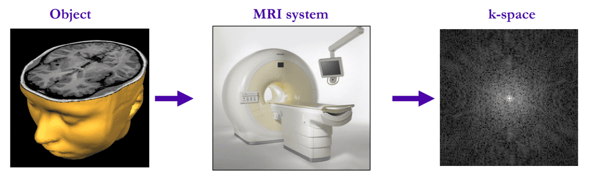 mri-image-acquitision-overview